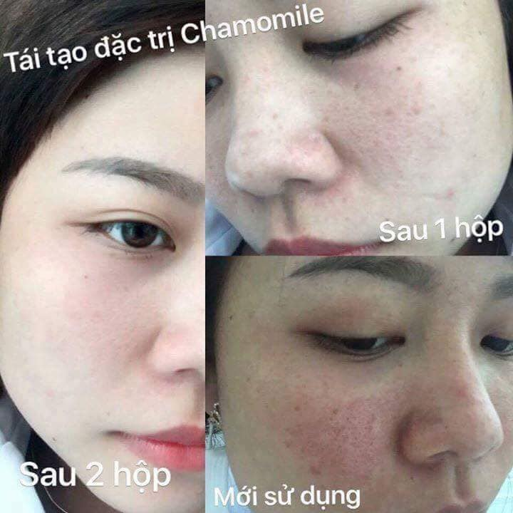 Hướng dẫn điều trị nám da bằng các sản phẩm trị nám Chamomileskill